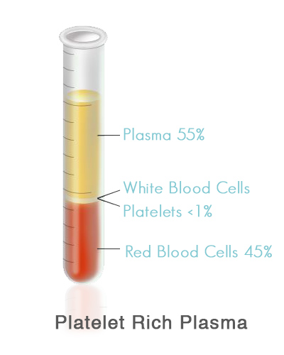 platelet-rich-plasma-therapy-the-woodlands2