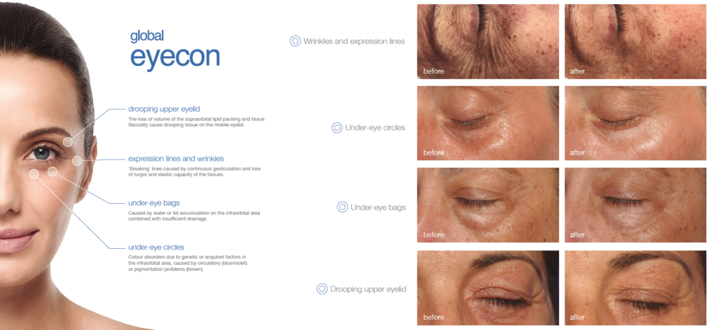 Global Eyecon Anti Aging Eye Treatment The Woodlands Spring