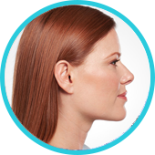 kybella-treatment-the-woodlands