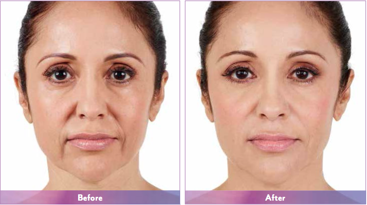juvedermxc-the-woodlands-spring-houston