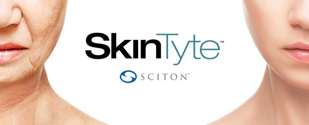 skintyte-ii-laser-treatment-the-woodlands-spring-houston