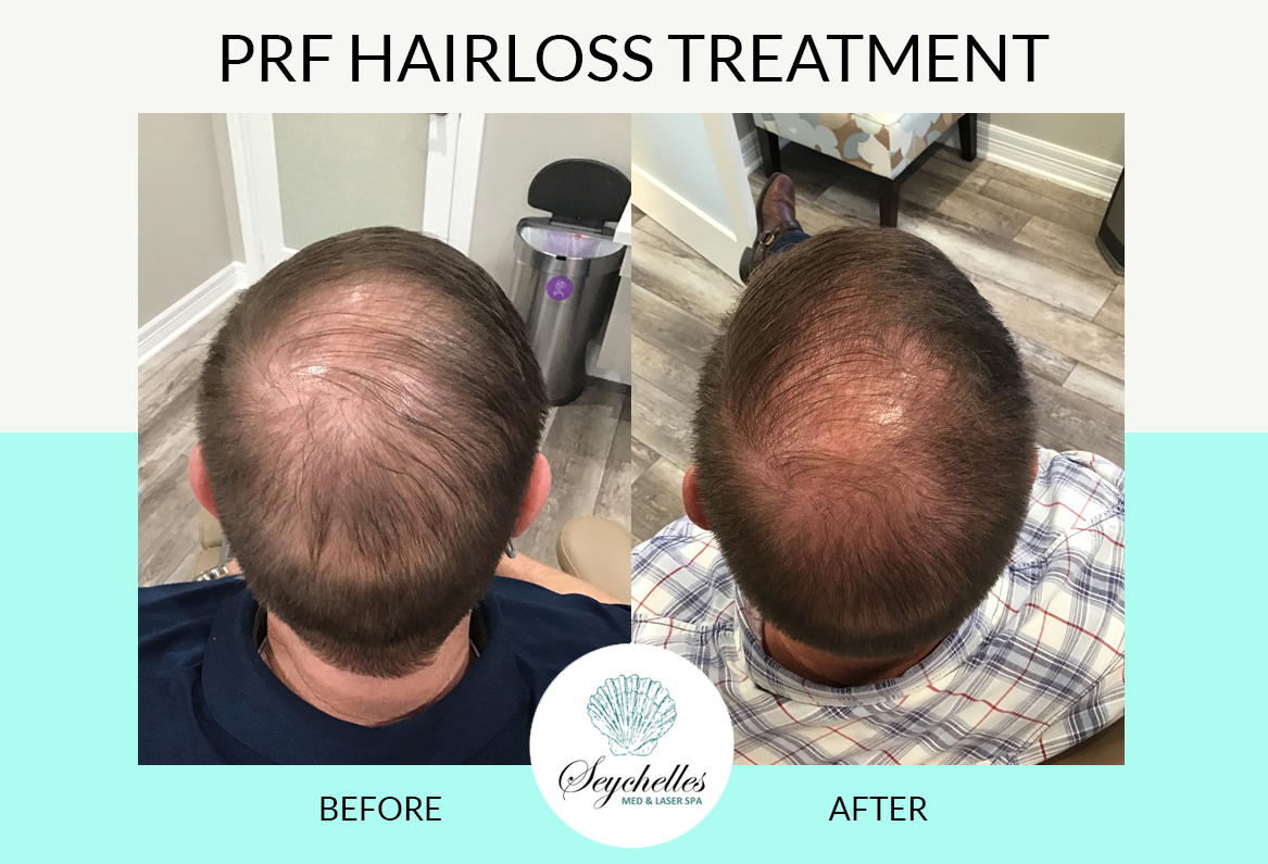 prf-hairloss-treatment-the-woodlands-spring-houston