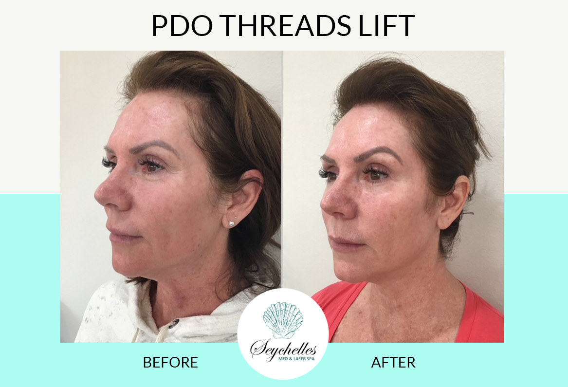 pdo-threads-face-lift-the-woodlands-spring
